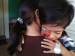 Bocah Penderita Tumor Mata dari Simatalu Mendapat Bantuan Selama Pengobatan